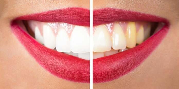 clareamento a laser dental