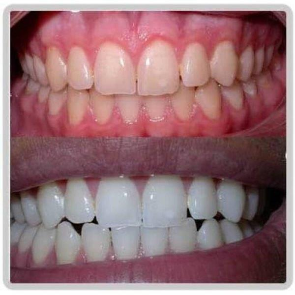 clareamento de dente a laser