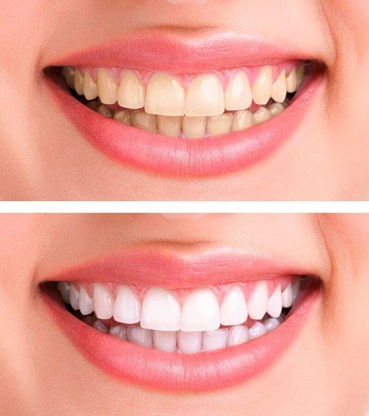 clareamento dental a laser valor