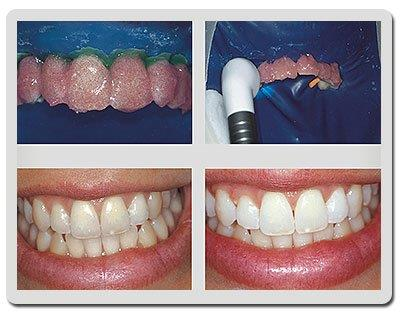 clareamento dental com laser