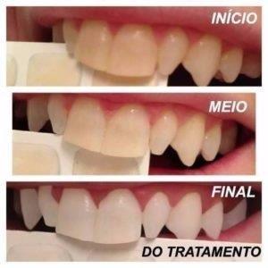 clareamento dental consultório