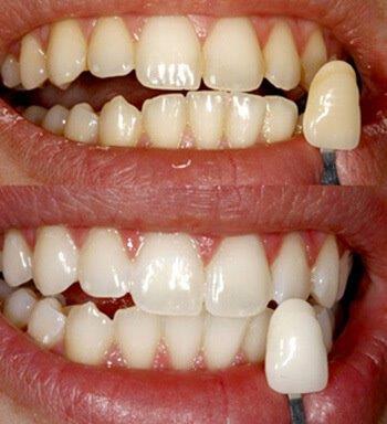 clareamento dental no consultório