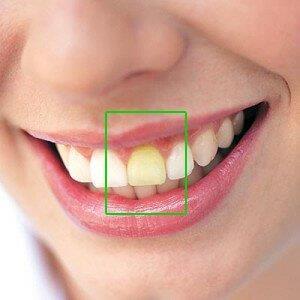 clareamento dental no dentista