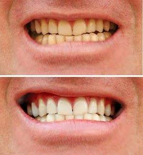 clareamento dentário quanto custa