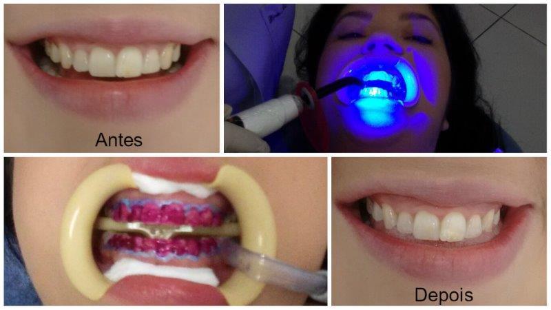 clareamento dos dentes a laser