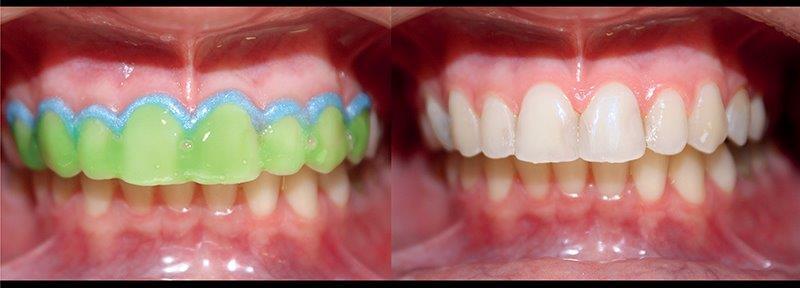 clareamento odontológico