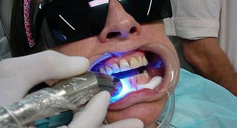onde fazer clareamento dental