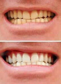 preço de clareamento dental a laser