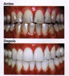quanto custa em media clareamento dental