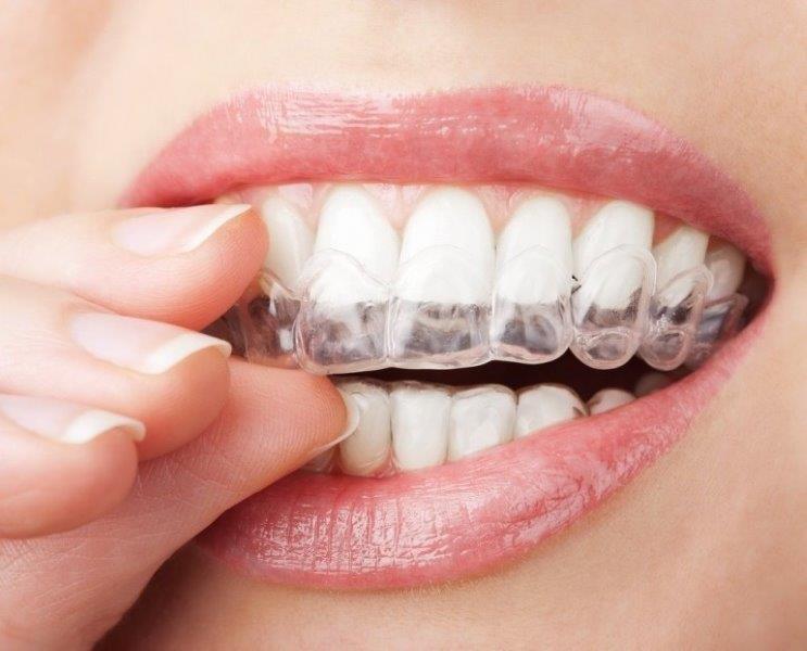 quanto custa para fazer um clareamento dental