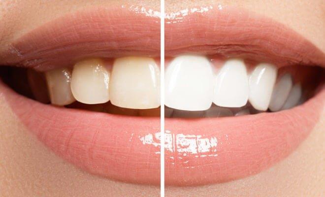 tratamento clareamento dental