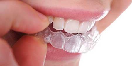 valor do clareamento dental
