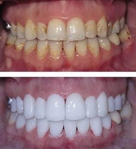 valor do clareamento dental a laser