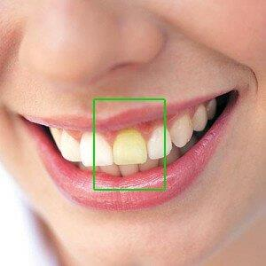 preço clareamento dental