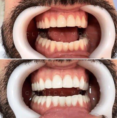 quanto custa o clareamento dental
