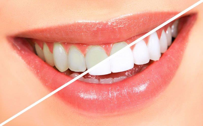 quanto custa um clareamento nos dentes