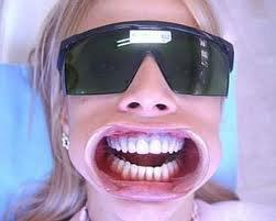 valor clareamento dental