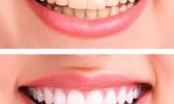 clareamento dental a laser valor