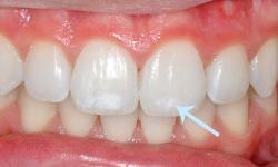 clareamento dental consultório preço
