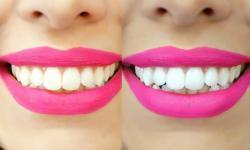 clareamento dental laser preço