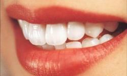 clareamento dentário a laser preço