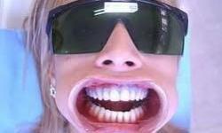 preço clareamento dental laser