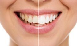 preço clareamento dos dentes