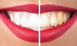 preço de clareamento dental