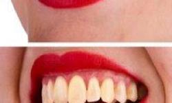 preço de um clareamento dentário