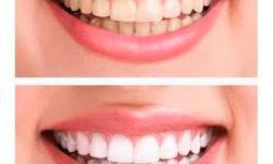 valor de clareamento dental a laser