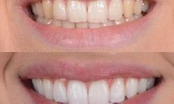 valor do clareamento dentário