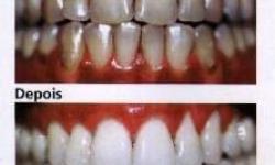 clareamento dental a laser preço