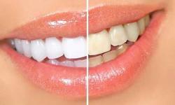 clareamento dentário valor