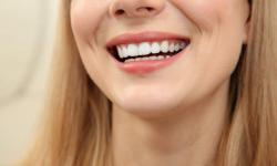 fazer clareamento dental