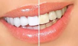 preço do clareamento dental