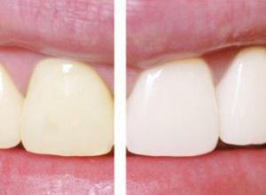 clareamento dental
