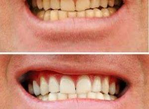 clareamento dental laser