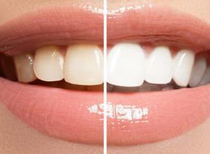 clareamento dental laser