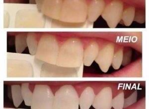 clareamento dos dentes preço