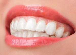 comprar clareamento dental