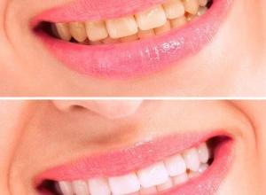preço clareamento dental a laser