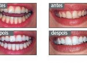 quanto custa clareamento dental