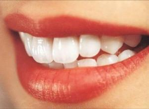 quanto custa para fazer clareamento nos dentes