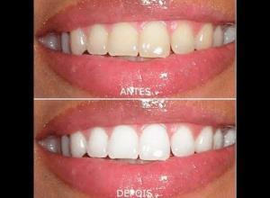 quanto custa um clareamento dentário