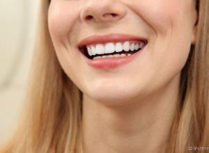 quanto é um clareamento dental