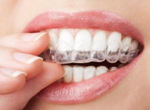 valor clareamento dentário