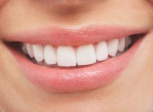 valor de clareamento dentário