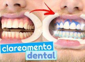 valor de um clareamento dental