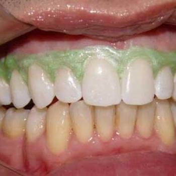 clareamento a laser nos dentes