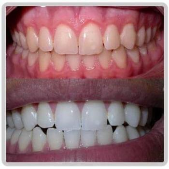 clareamento de dente preço